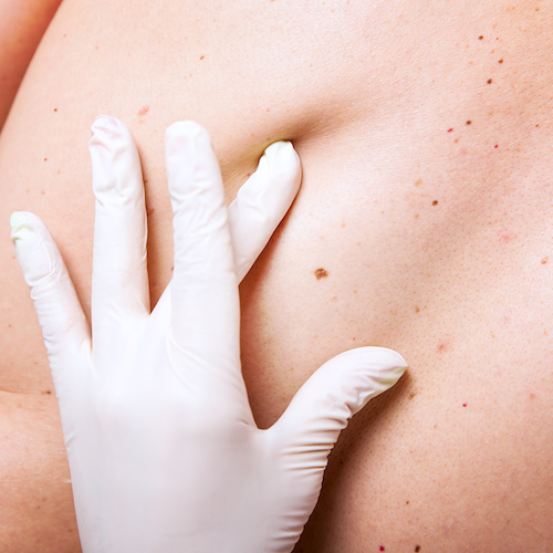skin examination of moles, skin cancer